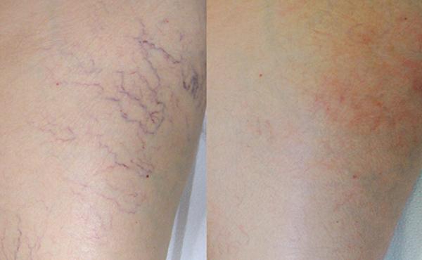 Удаление сосудов на ногах до и после